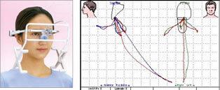 下顎運動解析装置 [CMS]